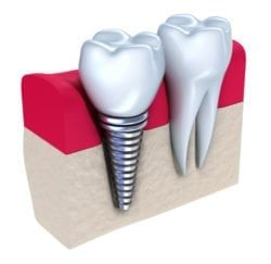 dental implants viera fl